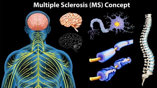 El diagnóstico oportuno vital en el paciente con esclerosis múltiple