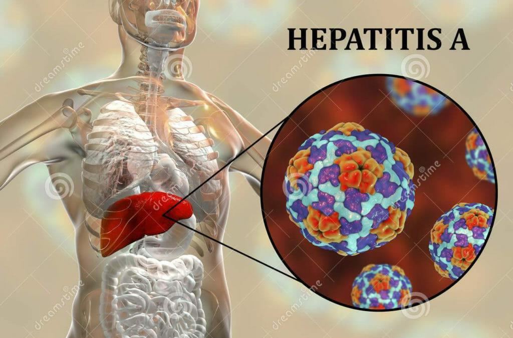 La hepatitis A se puede prevenir con higiene